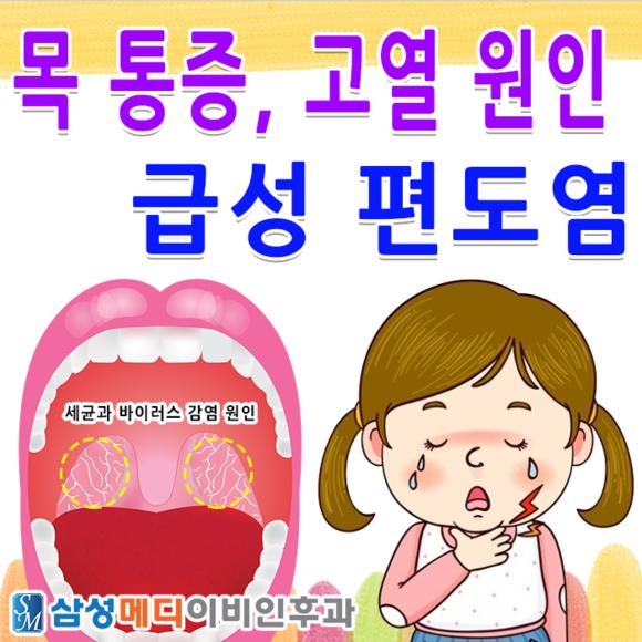 부산 목 통증 고열 원인 급성 편도염에 대해서 알아봅시다